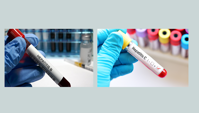 التهاب الكبد B: ما مدى اختلافه عن التهاب الكبد C وكيف يتم تشخيصه؟