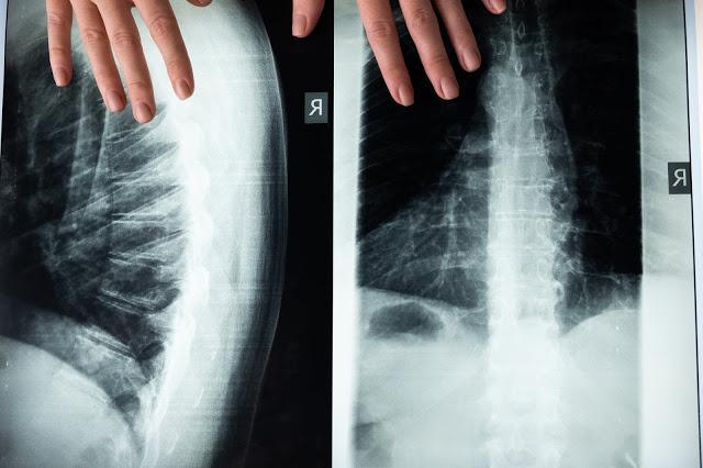 معلومات عن جراحة العمود الفقري