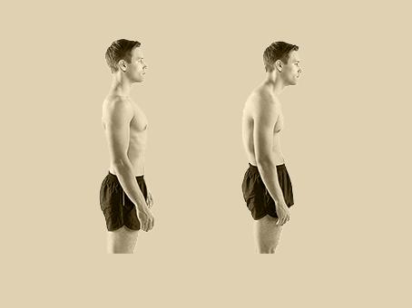 أسباب تقوس الظهر و طريقة العلاج-الحداب